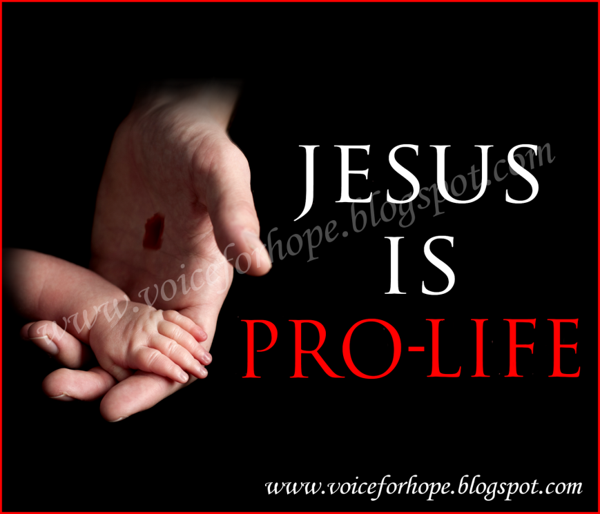 Jesus is Prolife WATERMARKED